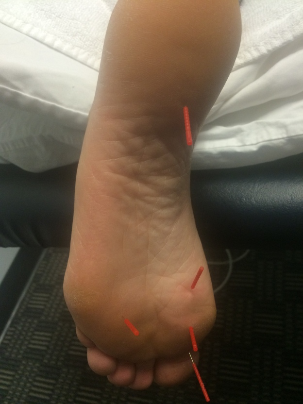 Needles in my foot